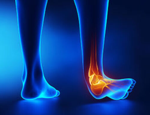 Prevention, Treatment, and Care of Chronic Ankle Instability